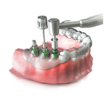 3-D Guided Implant
